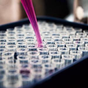 Nuevo proyecto de investigación en el NINDS financiado por Fundación Noelia